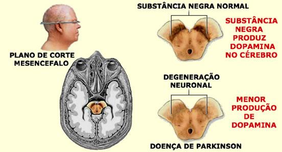 Figura 1 - Comparação entre a Substância Negra do Mesencéfalo em condições normais e com degeneração neuronal